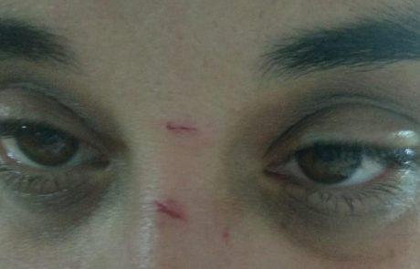 אמש: אלימות קשה בגן השעשועים באגמים, פצועה אחת במצב קל